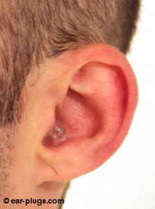 ear wearing  Alpine Hearing ProtectionAlpine PartyPlug, side angle view